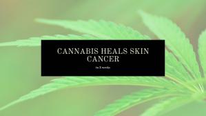 CANNABIS HEALS SKIN CANCER